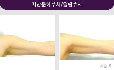 지방분해주사/슬림주사사진